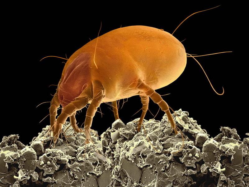 Самой лучшей сферой жизнедеятельности и размножения клещей является пыль